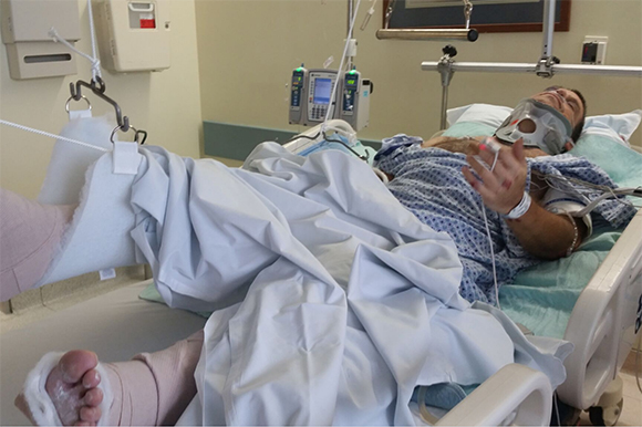 Michael Schwaid in the hospital after being hit by a motorist.